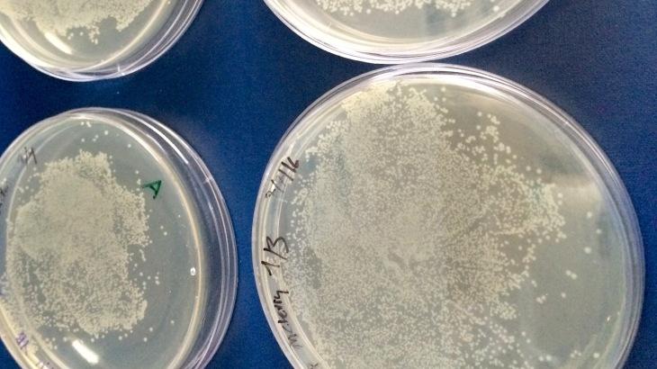 Bactéries en culture sur boites de Petri